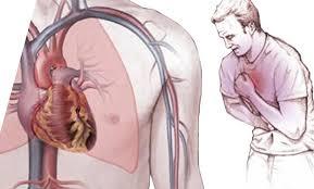 پاورپوینت دارو درمانی بیماری قلبی- عروقی آنژین صدری